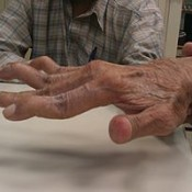 Blog Post : Who Else Wants to Learn About Swan Neck Deformity?
