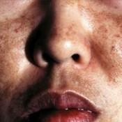 Blog Post : Melasma: Causes, forecast and symptoms