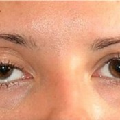 Ptosis: Symptoms, types, Diagnostics and treatment lyrics